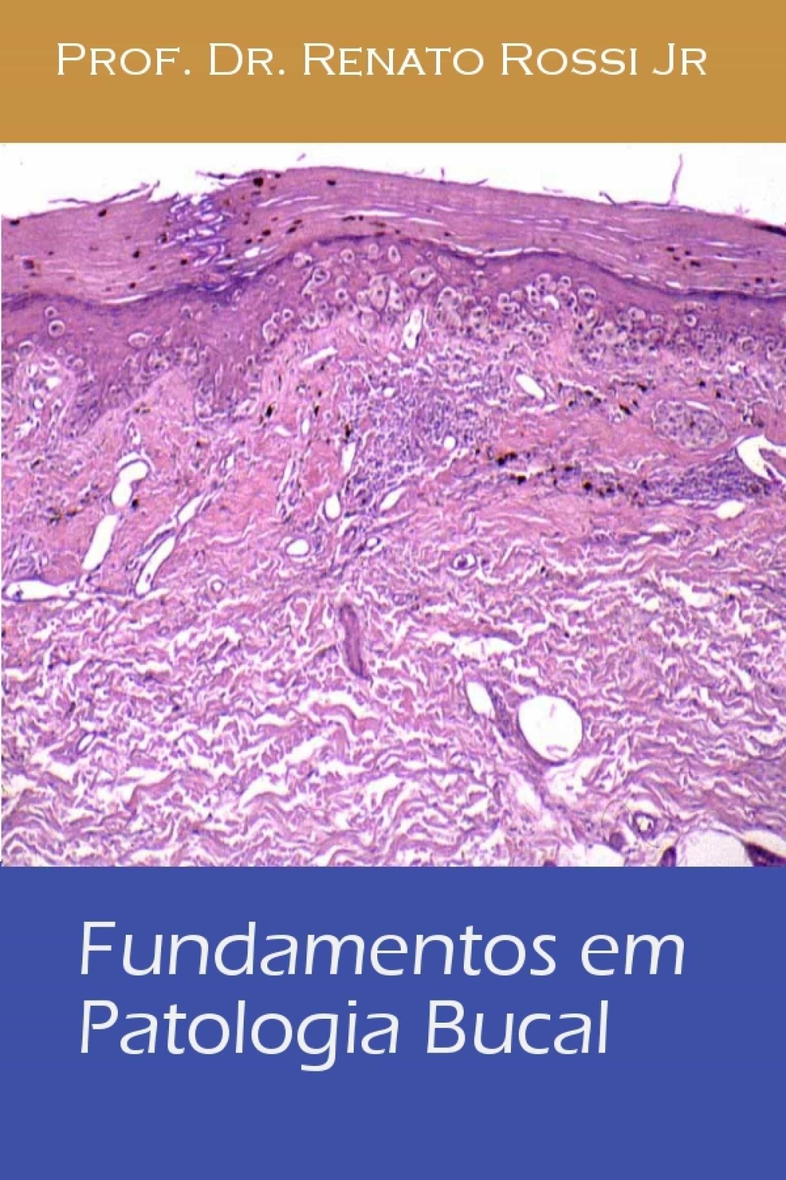 FUNDAMENTOS EM PATOLOGIA BUCAL EBOOK | RENATO ROSSI | Descargar ...