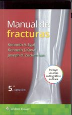 manual de fracturas (5ª ed.)-kenneth a. egol-kenneth j. koval-joseph d. zuckerman-9788416004829