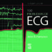 150 PROBLEMAS DE ECG (3ª ED.) J. R. HAMPTON