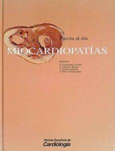 Vinisenzatrucco.it Miocardiopatías Image