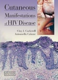 Descarga gratuita de libros electrónicos de electrónica digital. CUTANEOUS MANIFESTATIONS OF HIV DISEASE de CLAY J. COCKERELL, ANTOANELLA CALAME