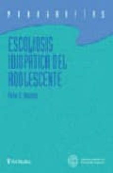 Descarga gratuita de libros torrent. ESCOLIOSIS IDIOPATICA DEL ADOLESCENTE MOBI PDB PDF (Literatura española)