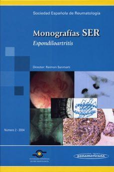 Descargar libros electronicos ipad MONOGRAFIA SER: Nº 2 (2004): ESPONDILOARTRITIS 9788479039059 (Spanish Edition)  de RAMON SANMARTI SALA