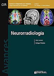Descargar libros en italiano AVANCES EN DIAGNOSTICO POR IMAGENES 4: NEURORADIOLOGIA (CIR, COLE GIO INTERAMERICANO DE RADIOLOGIA) 9789871259359 ePub de ENRIQUE PALACIOS (Literatura española)