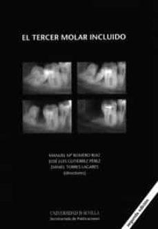 el tercer molar incluido (2ª ed)-jose luis gutierrez perez-9788447212569