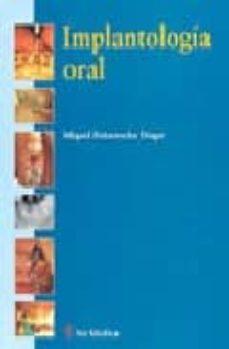 Audiolibros gratis para descargar en cd. IMPLANTOLOGIA ORAL (Literatura española) de MIGUEL PEÑARROCHA DIAGO DJVU ePub PDB