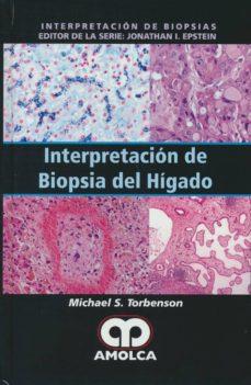 Descargar libro electrónico gratis alemán INTERPRETACION DE BIOPSIA DEL HIGADO FB2 RTF PDB de  9789588950389